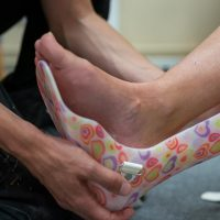 Our Best Advice For Broken And Sprained Ankles